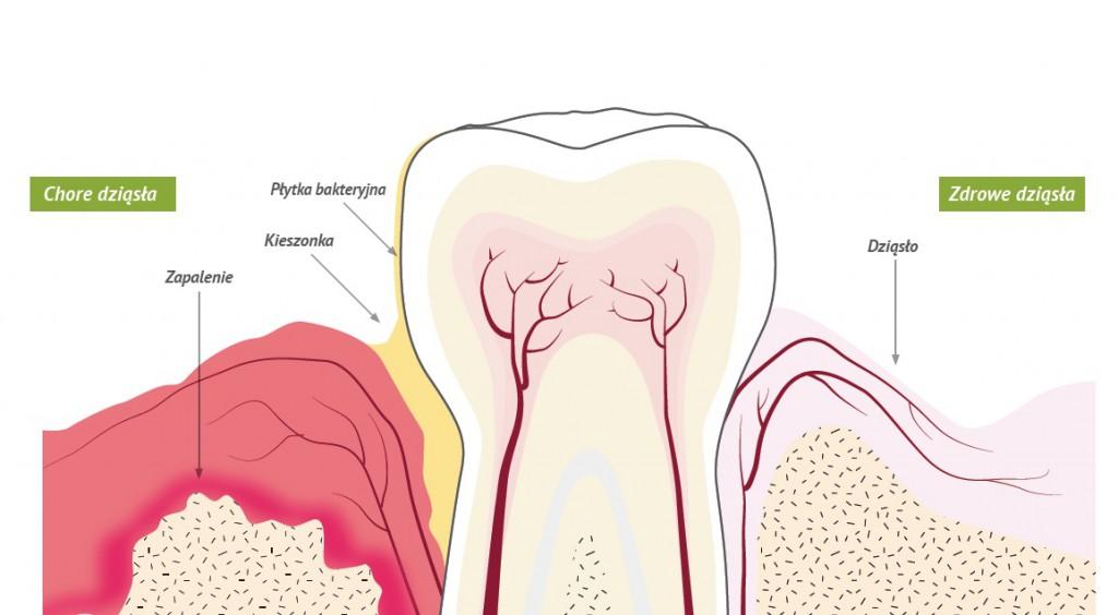 paradontoza-choroby-przyzebia-periodontolog-chore-dziąsła-1024x564