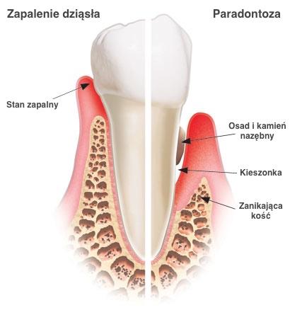 paradontoza-zapalenie-dziasel-choroby-dziasel-choroby-przyzebia-periodontolog